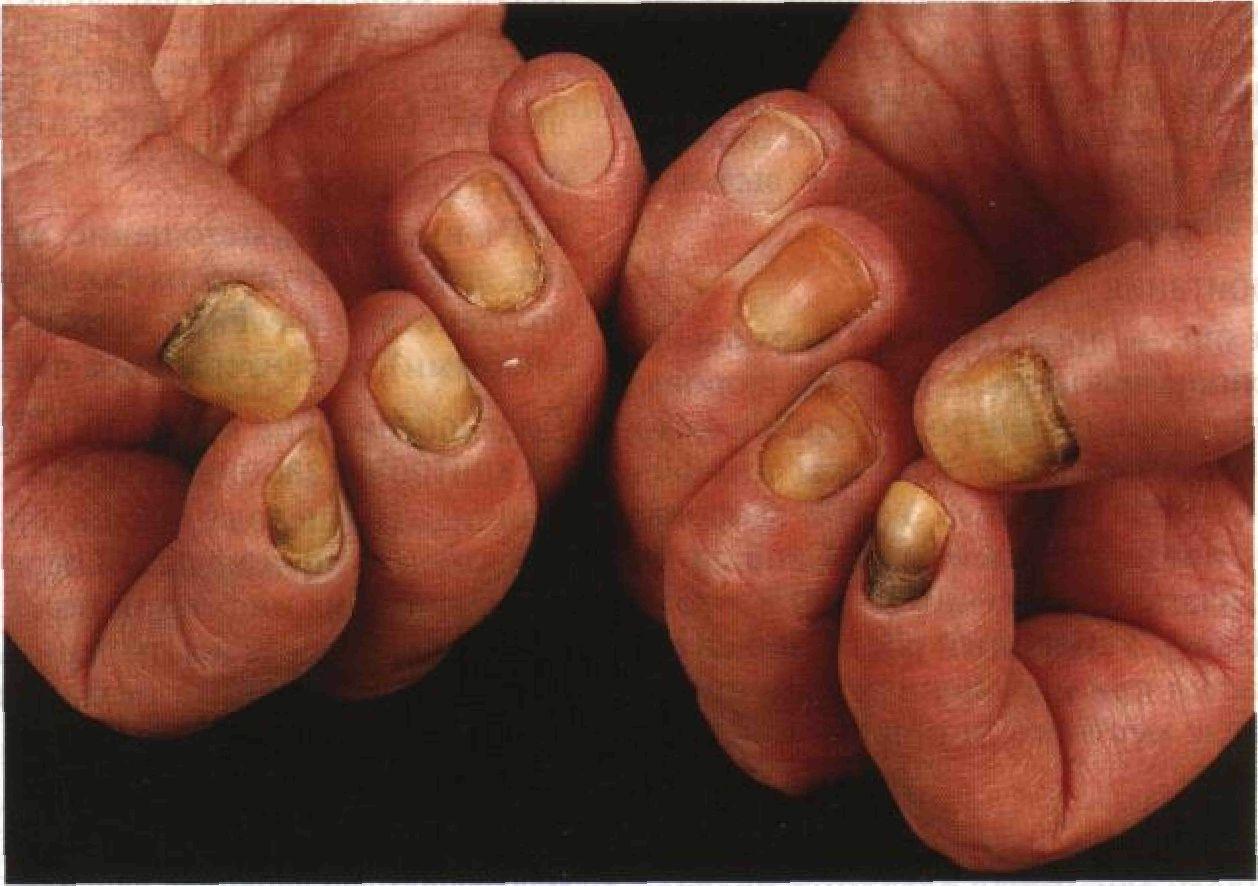 Кандидоз кожи и ногтей